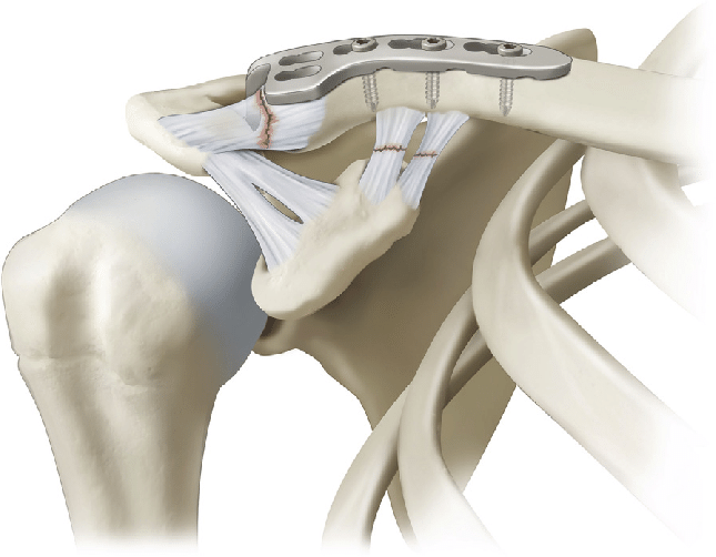 a-right-shoulder-acromioclavicular-joint-dislocation-treated-with-a-hook-plate-the-hook