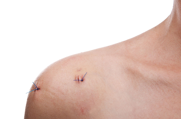 https://www.chirurgieartroscopica.ro/wp-content/uploads/2020/10/artroscopia-umarului-2.jpg