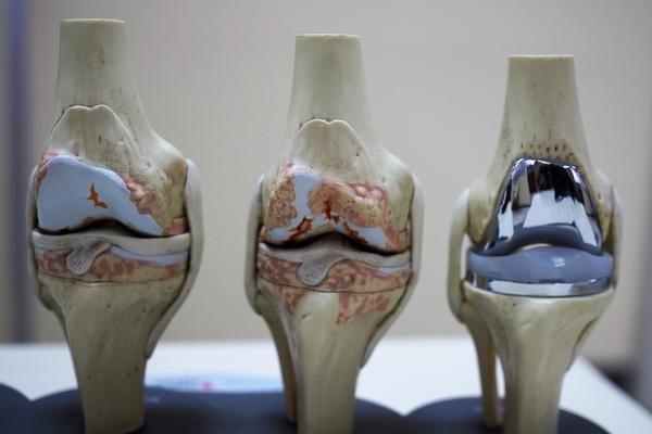 https://www.chirurgieartroscopica.ro/wp-content/uploads/2020/11/proteza-unicompartimentala-2.jpg