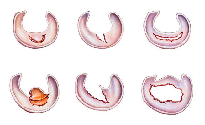 https://www.chirurgieartroscopica.ro/wp-content/uploads/2021/01/menisc-e1613299389288.jpg